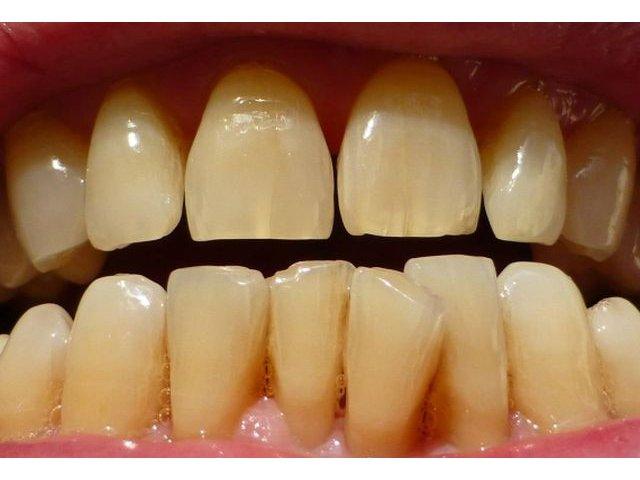 """4 efecte negative ale """"dintilor strambi"""" asupra sanatatii"""