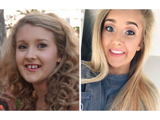 15 persoane transformate complet dupa ce si-au pus aparat dentar