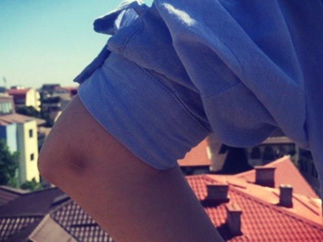 10 remedii naturale care te scapa de petele negre de pe genunchi si coate