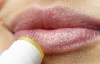 Cum tratezi herpesul: 10 metode simple si eficiente la care poti apela