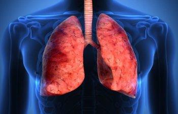 Ministrul Sanatatii spune ca ar putea fi adus in Romania un medicament impotriva cancerului pulmonar