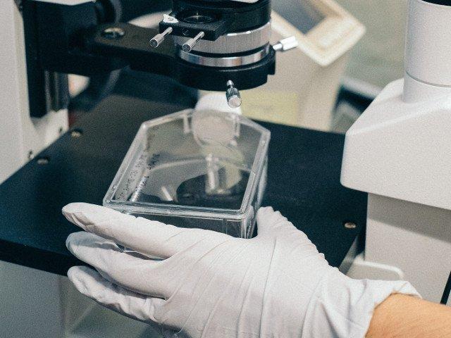 Peste 100 de gene asociate cu un risc ridicat de schizofrenie, identificate de cercetatori