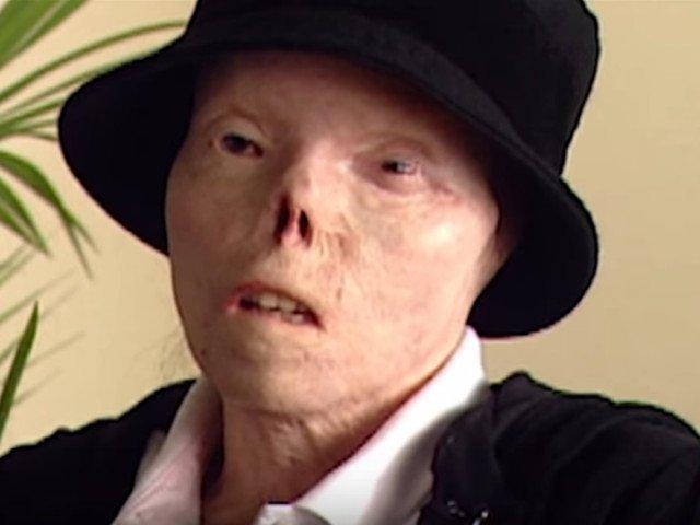 A murit Jacqui Saburido, femeia a carei fata desfigurata a devenit simbolul riscurilor la care ne expune condusul sub influenta alcoolului