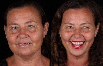 Un dentist bun reda zambetul pe chipul oricui: 10+ transformari ale unor oameni saraci, acum cu dantura perfecta