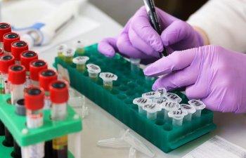 Studiu: A fost identificata o noua tulpina a virusului HIV