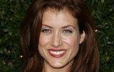 Actrita Kate Walsh din serialul ''Anatomia lui Grey'', operata pe creier